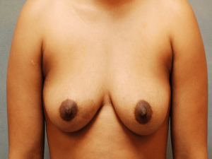 Manhattan Breast Augmentation Before 5